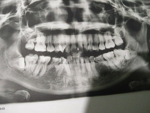 X-Ray of my teeth taken at Klinik Pergigian Dr Shal
