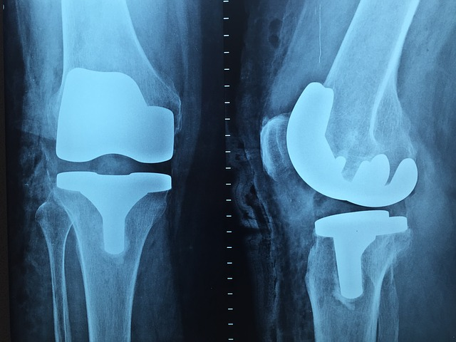X-ray of knee replacement.