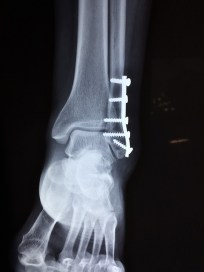 X-ray of ankle with external fixator. Fracture, broken bone. CAO