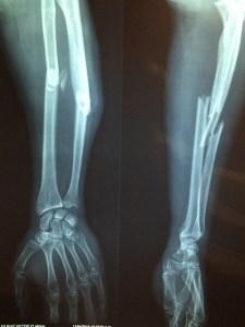 Fracture, Broken Bone, CAO
