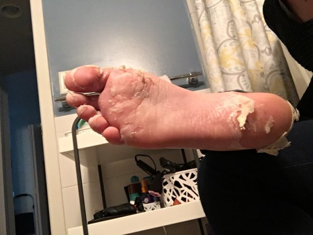 Day 5, right foot
