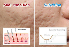 Subcision®