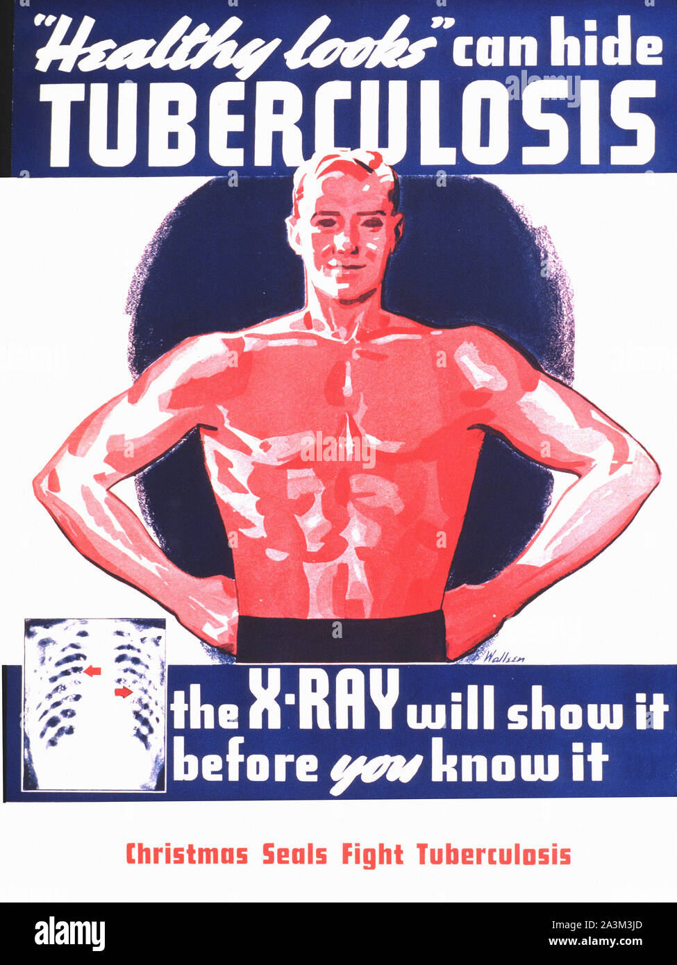 https www alamy com tuberculosis x ray vintage poster image329282869 html