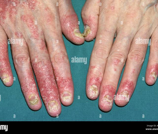 Psoriatic Arthritis Is A Condition That Causes Swelling And Pain In And Around The Joints