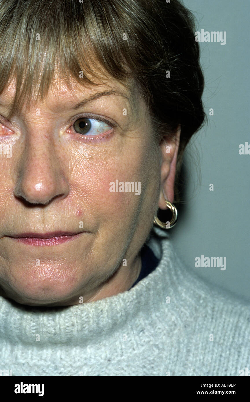 Parotid Swelling Due To Sjogren S Syndrome Stock Photo