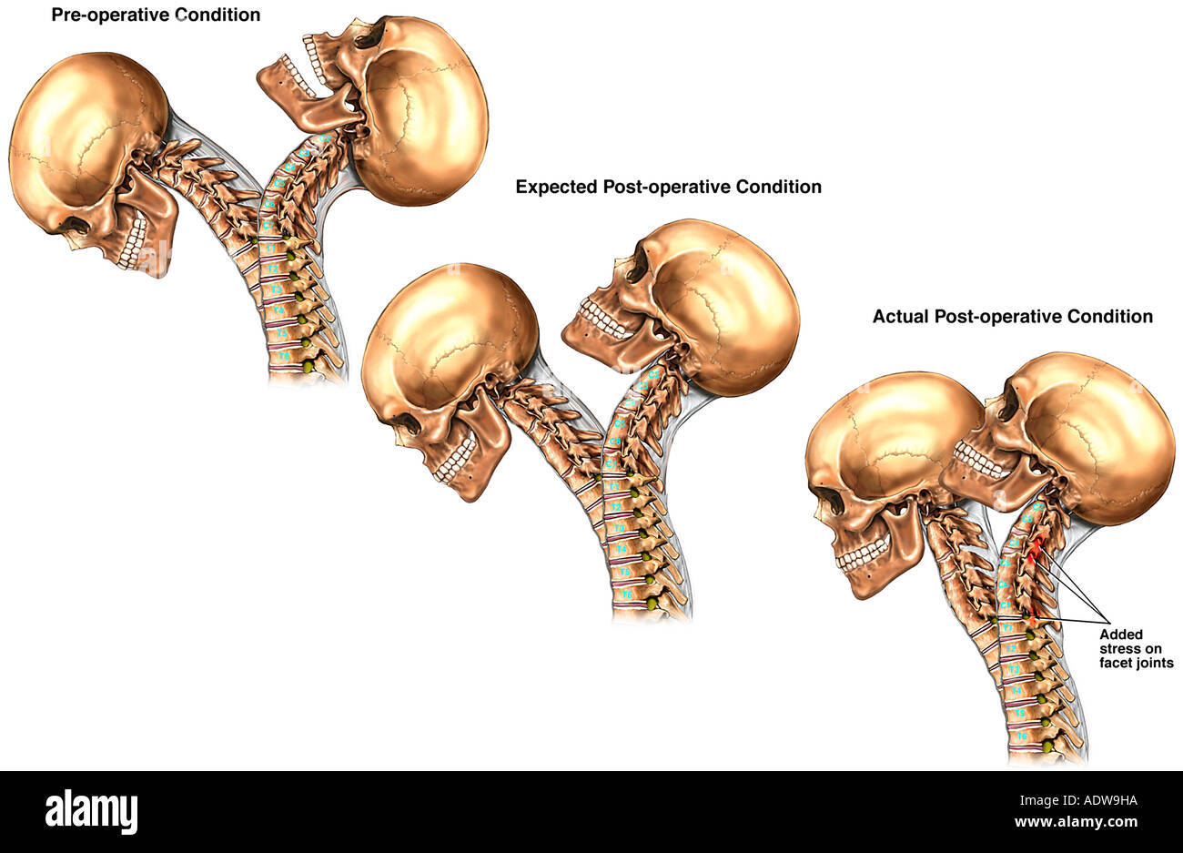 Of The Vertebral Column Spine Bones