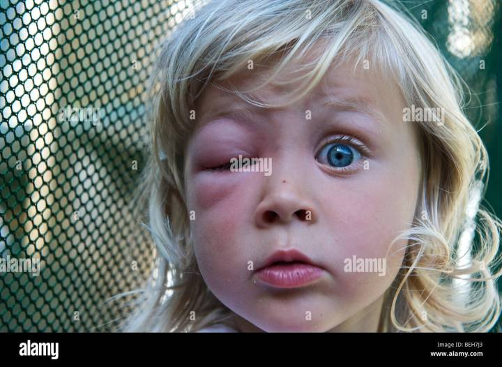 4 Year Old Girl With A Swollen Eye From Wasp S Sting