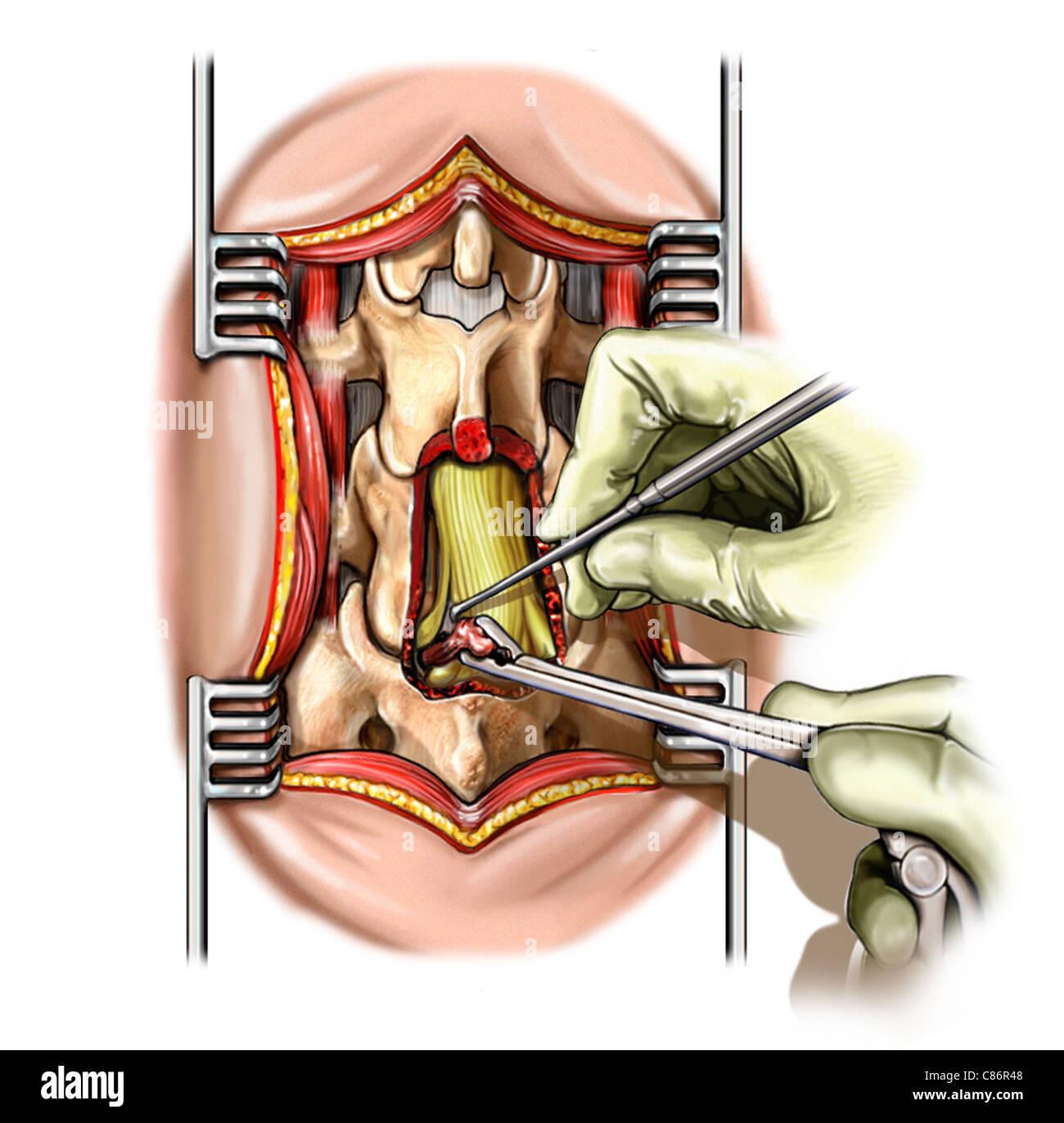 Lumbar L5 Spine Discectomy S1