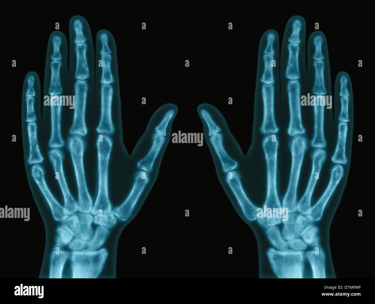 X Ray Normal Hand Stock Photos Amp X Ray Normal Hand Stock