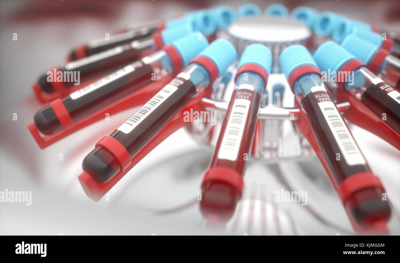 Lab Equipment Centrifuging Blood Concept Image Of A Blood Test Stock Photo
