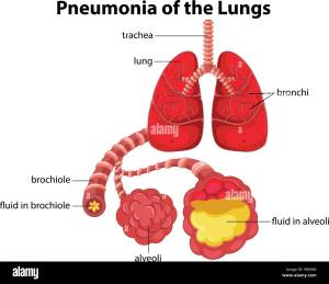 Pneumonia of the Lungs diagram illustration Stock Vector