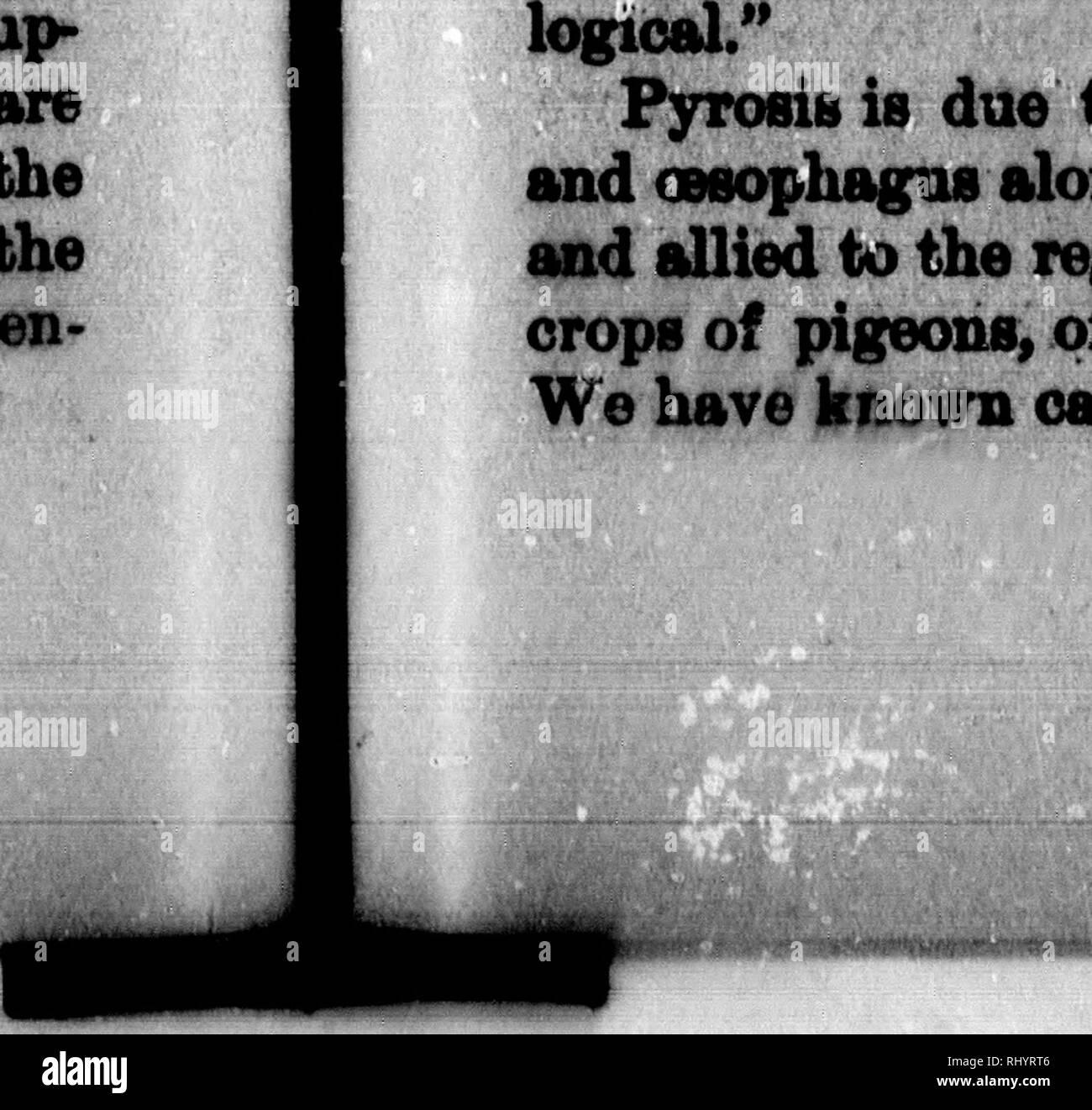 Larynx Black And White Stock Photos Amp Images