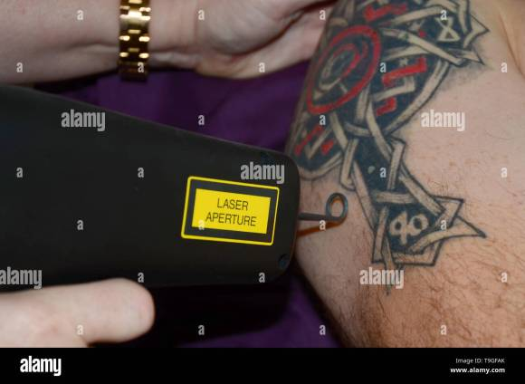 laser tattoo removal machine, regretfully tattoos Stock Photo - Alamy