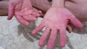 Dragonfruit stain