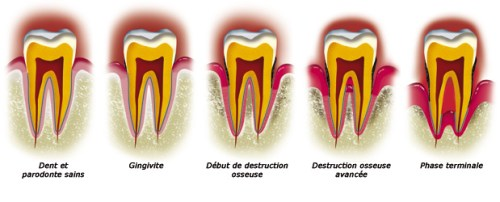 Maladies parodontaire
