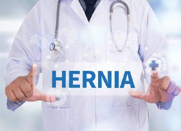 Recurrent Inguinal Hernia