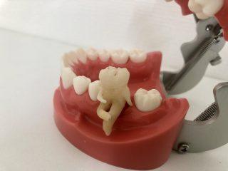 奥歯「少し休ませてもらっていいっすか?」器用な歯医者さんが「けだるい奥歯」の模型を作成