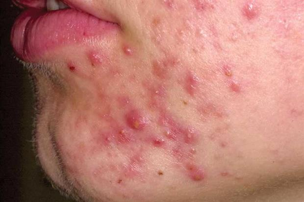 Lupus Rash African American Pictures