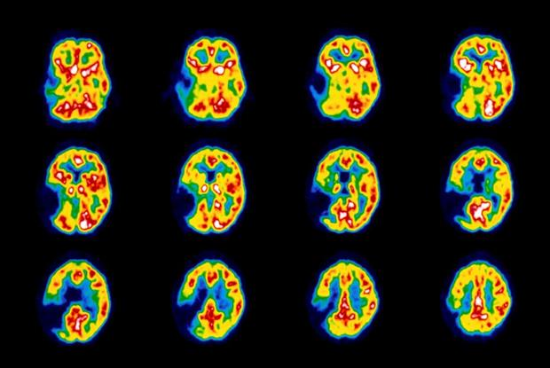 Stroke risk doubled in patients with depression. - Healthy ...