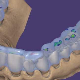 exocad DentalCAD and exocad Chairside (CS) | CAD-Ray com