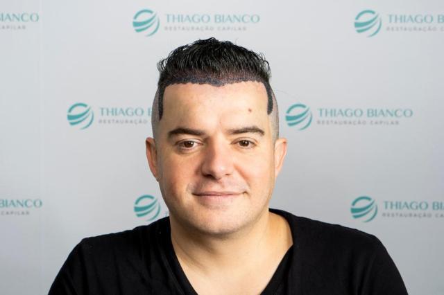 Belutti_Dr. Thiago Bianco (2)