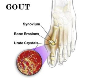 Reduces the risk of Gout