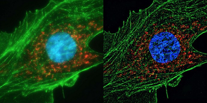 Human cell super resolution by  ZEISS Microscopy