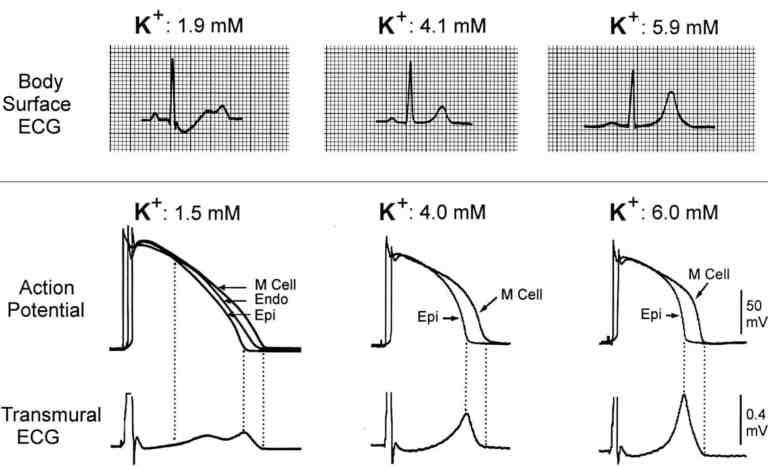 Pola EKG pada keadaan hipokalemia, kalium normal, dan hiperkalemia