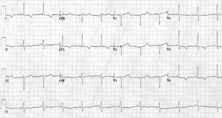 Contoh gambaran EKG dengan inversi T