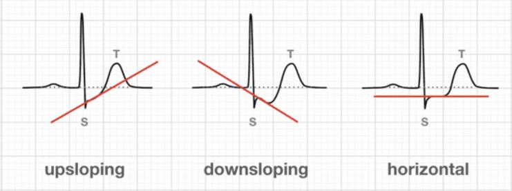 Tiga tipe depresi segmen ST pada EKG (UAP atau NSTEMI)