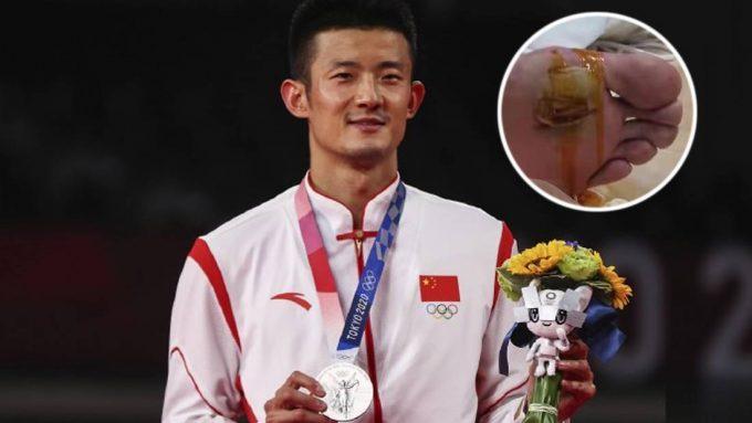 Digelar 'tak guna', jurulatih kongsi gambar sebenar tapak kaki Chen Long