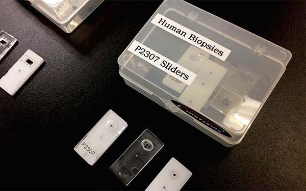 Human Biopsies