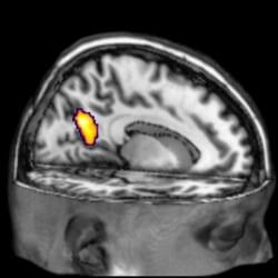 """Alzheimer's Disease """"Neuro Signature"""""""