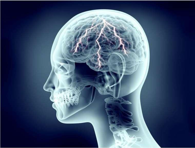 neurosignature