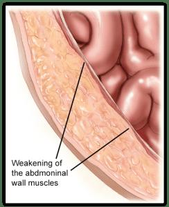 Weakened-Muscles