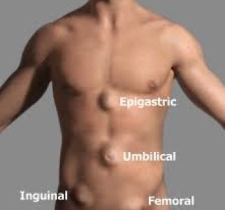 Hernia types are categorized based on where they are located on the body.