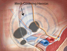 inguinal-hernia-defects-covered