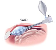 inguinal-repair-fig-j