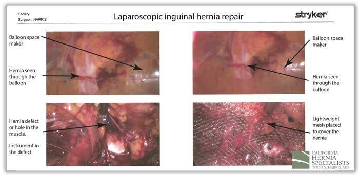 laparoscopic-inguinal