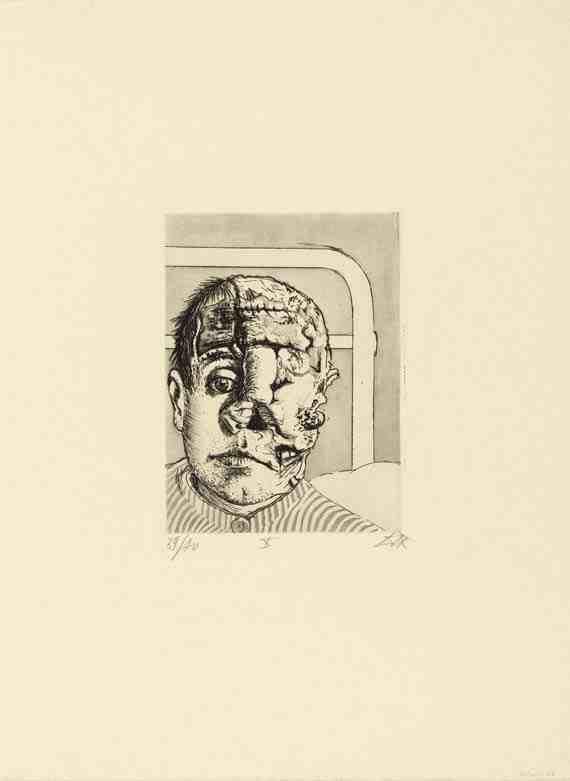 Otto Dix: Skin Graft
