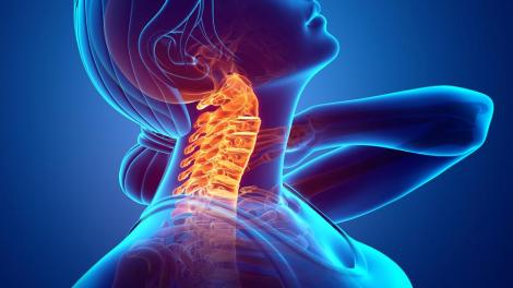 ICARE NECK - COUNT ON A GOOD CHIROPRACTOR FOR YOUR NECK PAIN CAUSED BY YOUR CELLPHONE