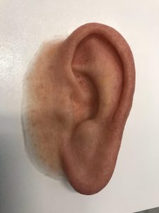 IMG 4728 225x300 - A MAN FROM ORLANDO RECEIVES AN EAR PROSTHESIS AND HIS LIFE IS CHANGED FOREVER