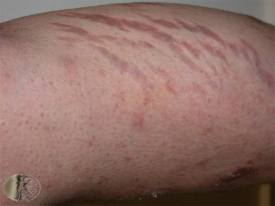 Atrophy or Striase