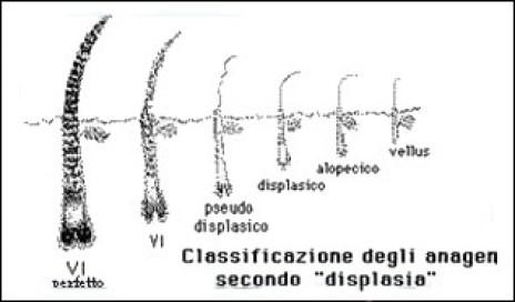 displassia_calvizie