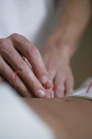 Applying acupuncture lower back - Camelia House - Acupuncture Center of Acadiana