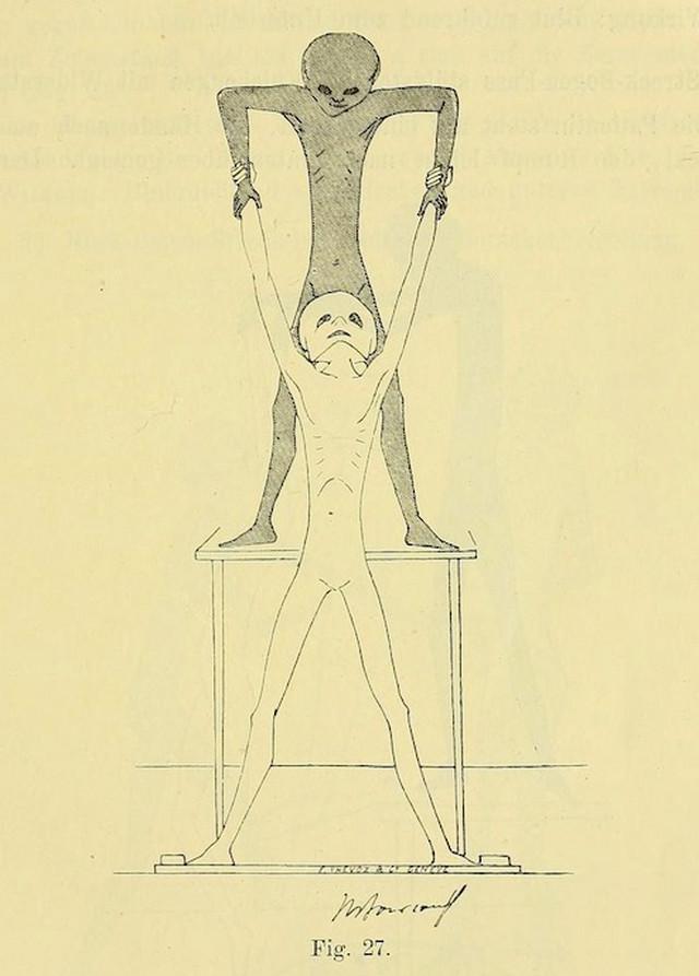 lechebnaya-gimnastika-v-ginekologii-po-Ture-Brandtu-illyustratsii 10