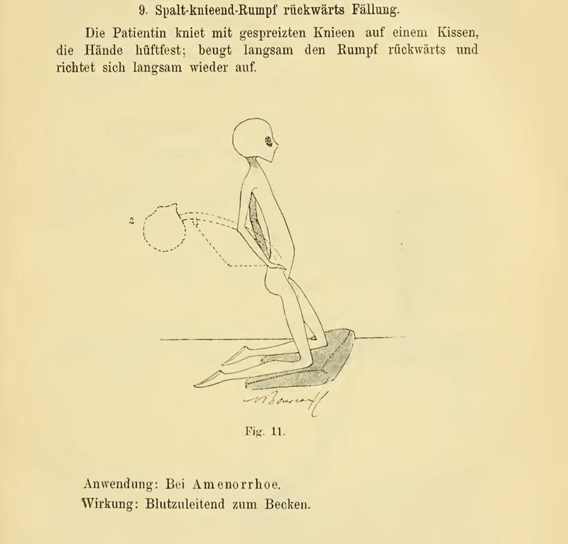 lechebnaya gimnastika v ginekologii po Ture Brandtu illyustratsii 29