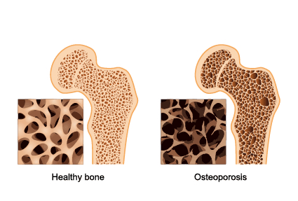 fractures-and-bone-density-2