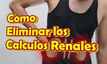 Como Eliminar Calculos Renales Naturalmente, Litiasis Renal Tratamiento