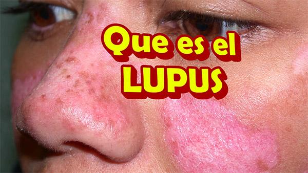 Que es el LUPUS y sus Sintomas, como se Manifiesta y como se cura